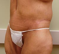 Belt lipectomy after photo