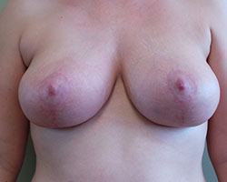 Breast lift after photo