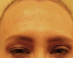 Botox treatment after photo