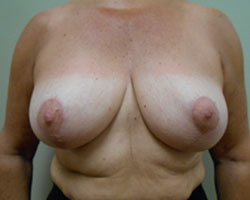 Breast lift/reduction after photo