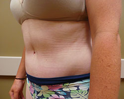 Tummy Tuck after photo