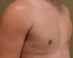 Male breast reduction after photo