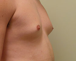 Male breast reduction before photo