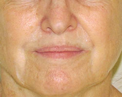 Juvederm before photo