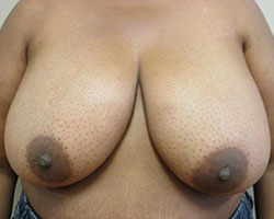 Breast lift/reduction before photo