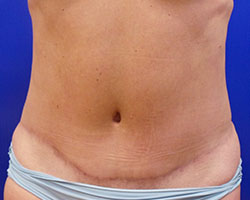 Tummy tuck (abdominoplasty) after photo